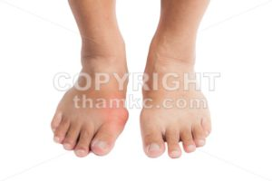 Pair of feet with deformed right toe due to painful gout inflammation - ThamKC Royalty-Free Photos