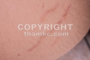 Closeup on stretch marks or cellulite on waist belly - ThamKC Royalty-Free Photos