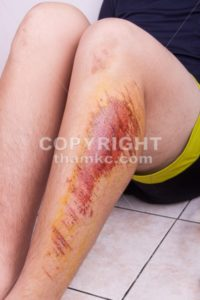 Injured knee with painful abrasion from fall - ThamKC Royalty-Free Photos