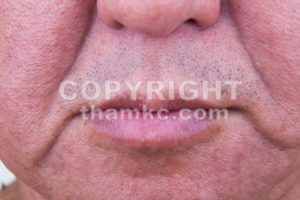 Closeup on saggy cheek skin of matured Asian man - ThamKC Royalty-Free Photos