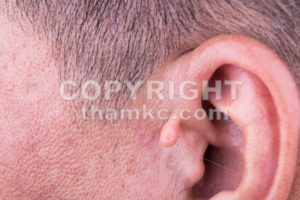 Human mutation with extra growth on ear - ThamKC Royalty-Free Photos
