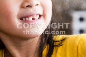 Kid with toothless and deformed front teeth - ThamKC Royalty-Free Photos