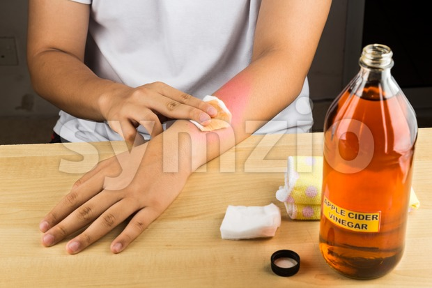 Apple cider vinegar effective natural remedy for skin itch, fungal infection, warts, bruises and burns. Stock Photo