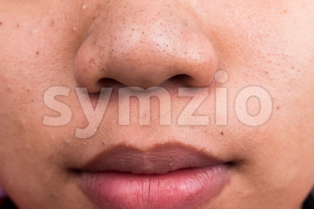Pimple blackheads on the nose and mouth area of an Asian teenager Stock Photo