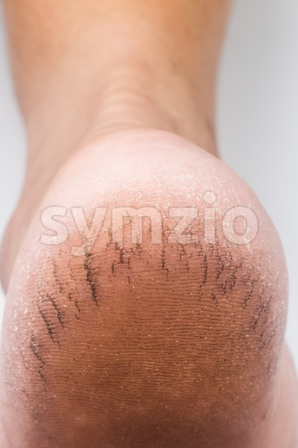 Dry and badly cracked heel of a matured person in vertical format Stock Photo