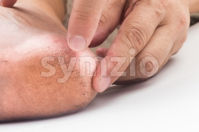 Fingers embraching dry and badly cracked heel of a matured person Stock Photo