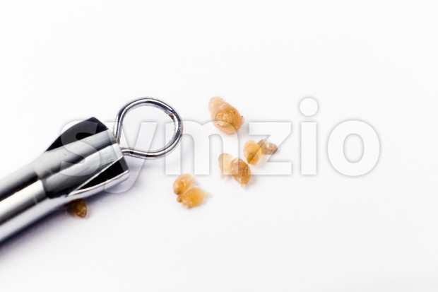Closeup of pimple popping tool and the extracted blackheads Stock Photo