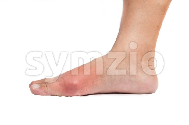 Deformed right big toe with painful gout inflammation Stock Photo
