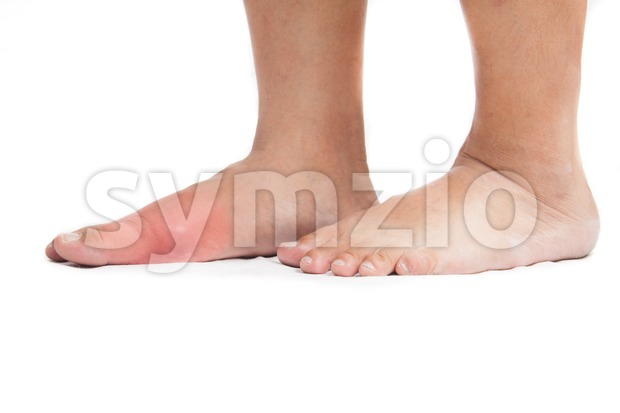 Pair of feet with deformed right toe due to painful gout inflammation Stock Photo
