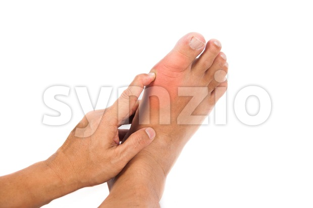 Hand embraces painful gout inflammation on big toe joint Stock Photo