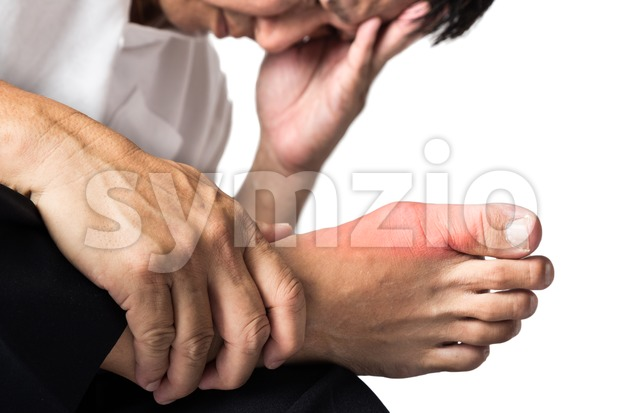 Man with painful and inflamed gout on his foot around the big toe area. Stock Photo