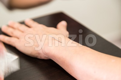 Acupuncture needle pricking into skin, with shallow depth of field. Stock Photo