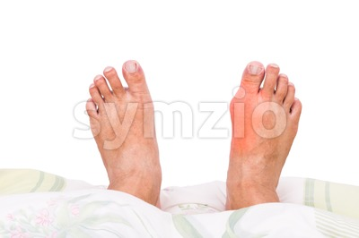 Right foot with painful swollen gout inflammation resting on bed Stock Photo