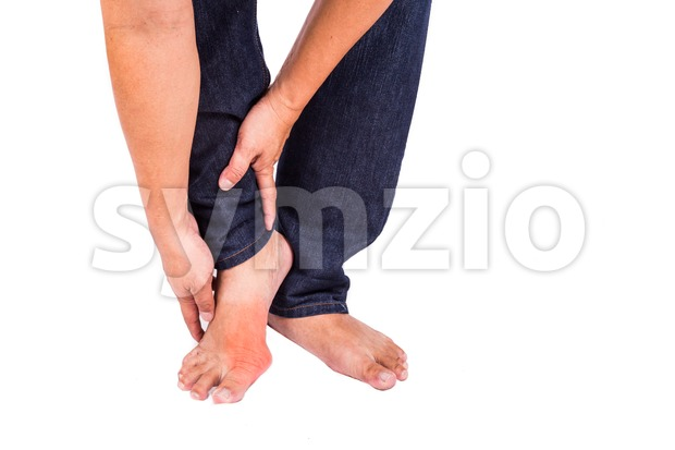 Man embraces foot with painful and swollen gout inflammation Stock Photo