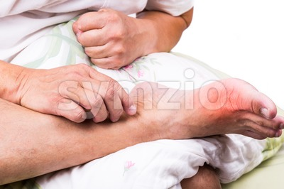 Man on bed embrace foot with painful swollen gout inflammation Stock Photo