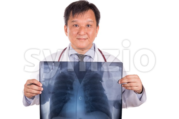 Matured Asian medical doctor posing with lungs X-ray negative film Stock Photo