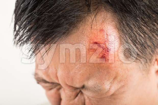 Selective focus on painful red swollen forehead of man injured from accidental fall