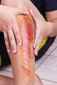 Hand embracing injured knee with painful abrasion from fall Stock Photo