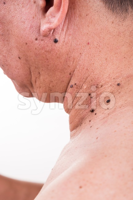 Multiple mole on neck and shoulder of Asian male on white background