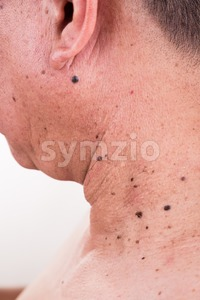 Multiple mole on neck and shoulder of Asian male Stock Photo