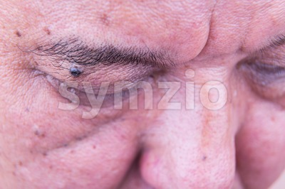 Mole on eyelid of Asian man Stock Photo