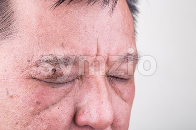 Mole removed via skin graft procedure leaving scar Stock Photo