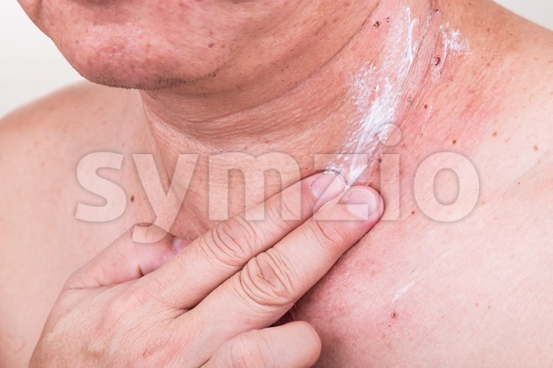 Man applying antibiotic cream onto wound from removed mole Stock Photo