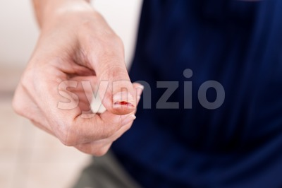 Painful thumb finger with cut injury Stock Photo