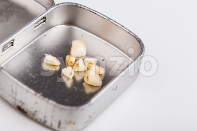 Collection of extracted milk teeth kept in box Stock Photo