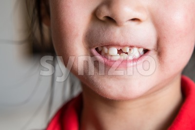 Kid with toothless and deformed front teeth Stock Photo
