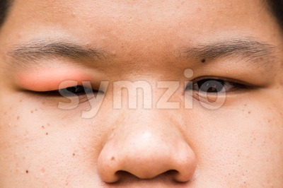 Swollen red upper eye lid with onset of stye infection Stock Photo