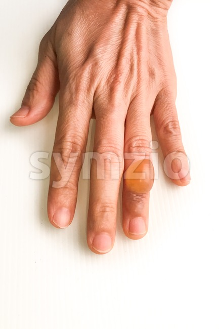 Finger with painful inflammed fluid-filled blister on white background