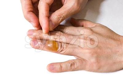 Close-up pricking painful inflammed fluid blister finger with sharp needle Stock Photo