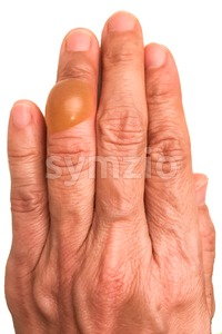 Close-up on finger with painful inflammed fluid-filled blister Stock Photo