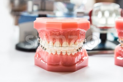 Orthodontics dental braces on teeth model to align teeth Stock Photo